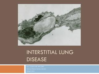 Interstitial Lung Disease