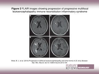 Figure 2  FLAIR images showing progression of progressive multifocal leukoencephalopathy immune reconstitution inflamma