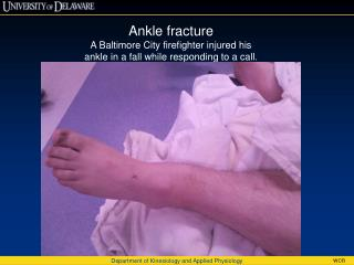 Ankle fracture A Baltimore City firefighter injured his ankle in a fall while responding to a call.