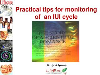 Practical tips for monitoring  of  an IUI cycle