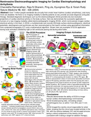 Noninvasive Electrocardiographic Imaging for Cardiac Electrophysiology and Arrhythmia