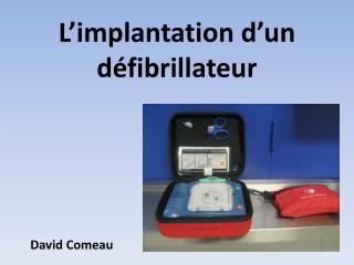 L'implantation d'un défibrillateur