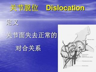 关节脱位   Dislocation