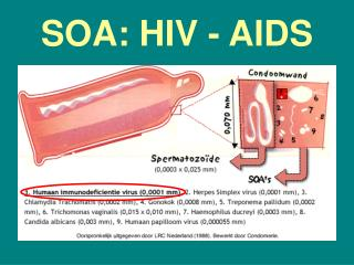 SOA: HIV - AIDS