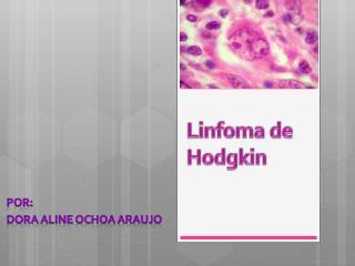 Linfoma de  Hodgkin