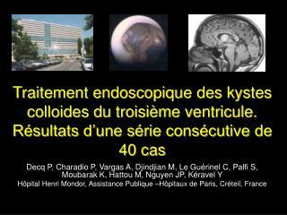 Traitement endoscopique des kystes colloides du troisi