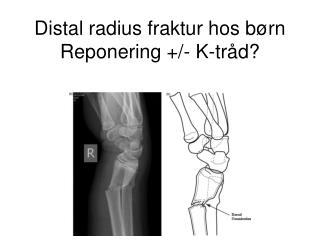 Distal radius fraktur hos børn  Reponering +/- K-tråd?