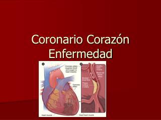 Coronario Corazón Enfermedad