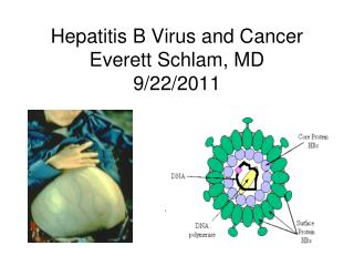 Hepatitis B Virus and Cancer Everett Schlam, MD 9/22/2011