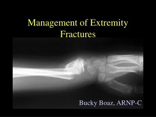 Management of Extremity Fractures