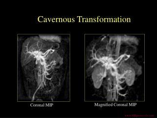 Cavernous Transformation