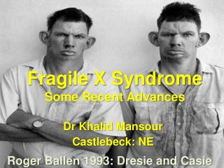 Fragile X Syndrome Some Recent Advances