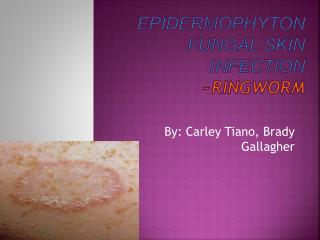 Epidermophyton  fungal skin  iNfection ~RINGWORM