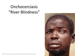 "Onchocerciasis ""River Blindness"""