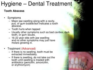 Hygiene –  Dental  Treatment