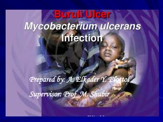 Buruli Ulcer Mycobacterium ulcerans  Infection