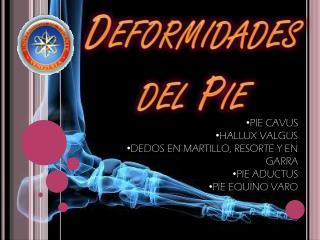 Deformidades del Pie