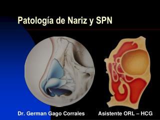 Patolog a de Nariz y SPN