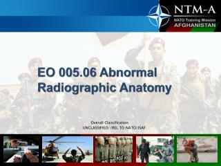 EO 005.06 Abnormal Radiographic Anatomy