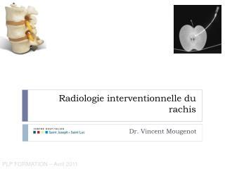 Radiologie interventionnelle du  rachis