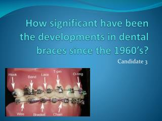 How significant have been the developments in dental braces since the 1960's?