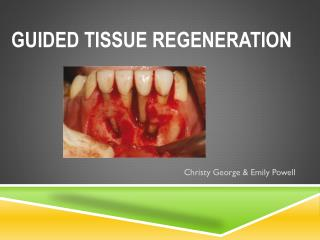 Guided Tissue Regeneration