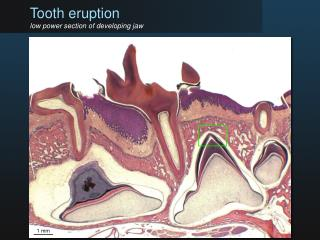 Tooth eruption low power section of developing jaw