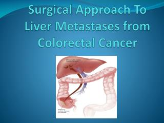Surgical Approach To Liver Metastases from Colorectal Cancer