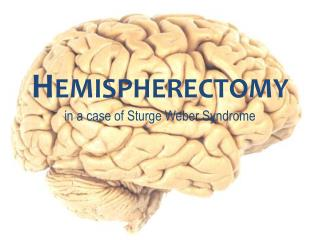 Hemispherectomy in a case of  Sturge  Weber Syndrome