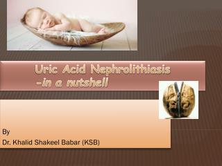 Uric Acid  Nephrolithiasis -in a nutshell
