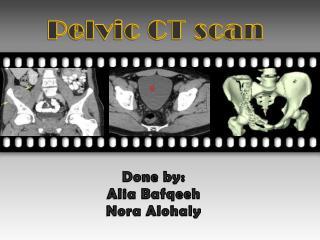 Pelvic CT scan