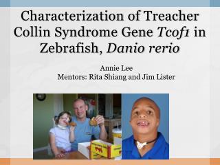 Characterization of Treacher Collin Syndrome Gene Tcof1 in Zebrafish, Danio rerio