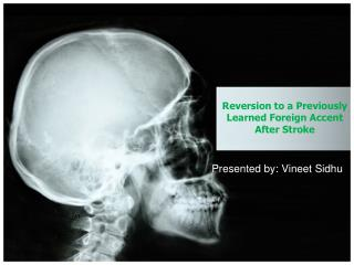 Reversion to a Previously  L earned Foreign Accent After Stroke