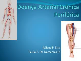 Doença Arterial Crônica Periférica