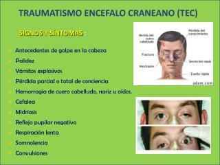 TRAUMATISMO  ENCEFALO CRANEANO  (TEC)