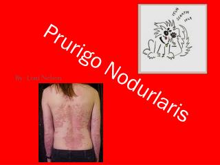 Prurigo Nodurlaris