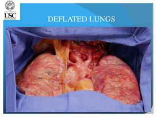 DEFLATED LUNGS