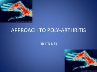 APPROACH TO POLY-ARTHRITIS