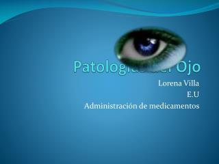 Patologías del Ojo