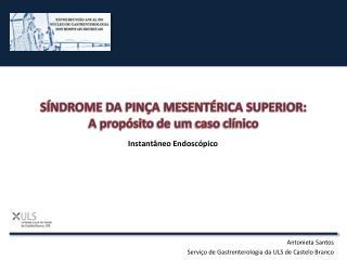 SÍNDROME DA PINÇA MESENTÉRICA SUPERIOR:  A  propósito  de um  caso clínico