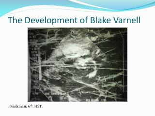 The Development of Blake Varnell