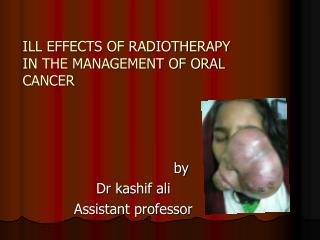 ILL EFFECTS OF RADIOTHERAPY IN THE MANAGEMENT OF ORAL CANCER