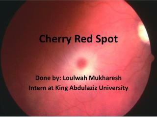 Cherry Red Spot