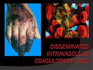 Disseminated intravascular coagulopathy (DIC)