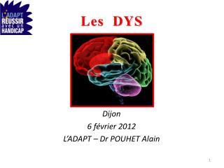 Les  DYS