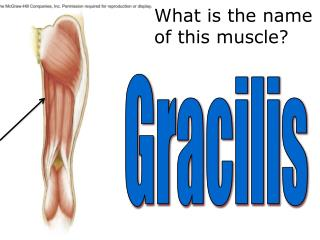 What is the  name  of this muscle?