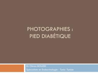 Photographies :  pied diabétique