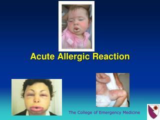 Acute Allergic Reaction