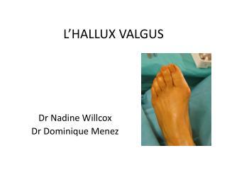 L'HALLUX VALGUS