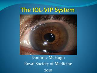 The IOL= The IOL-VIP System